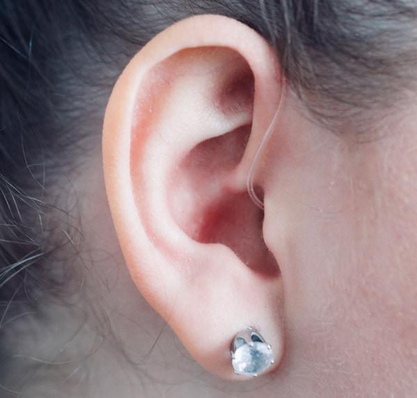Hörgerät-Anpassung